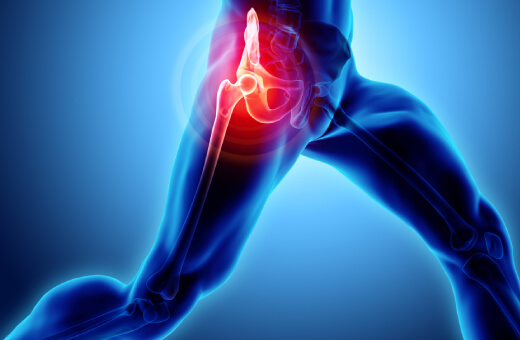 What Are the Average Expenses for Total Hip Replacement in India?