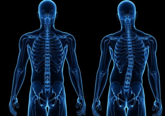 World Class Kyphosis Treatment in India at Pocket-Friendly Price